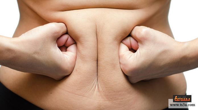 السمنة بعد الولادة القيصرية نصائح لتعجيل الشفاء بعد الولادة القيصرية