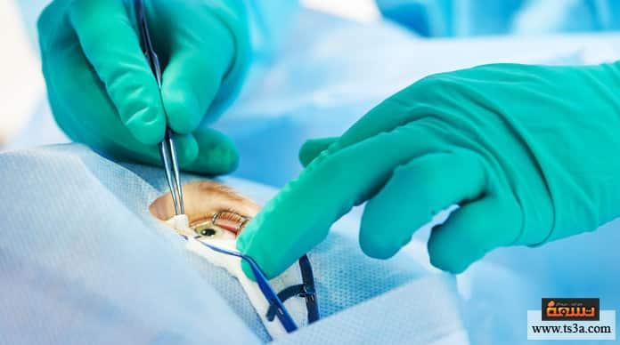 بعد عملية الليزك ما هي الأمراض التي تعالجها عملية الليزك؟