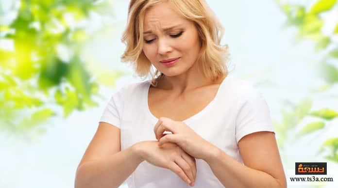 حساسية النباتات الحساسية الجلدية