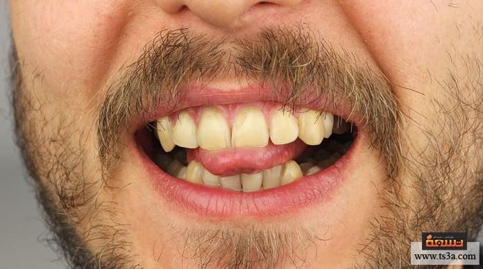 رواسب الأسنان جير الأسنان الأصفر