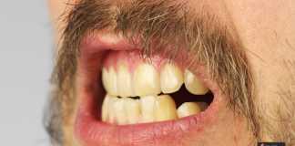 رواسب الأسنان