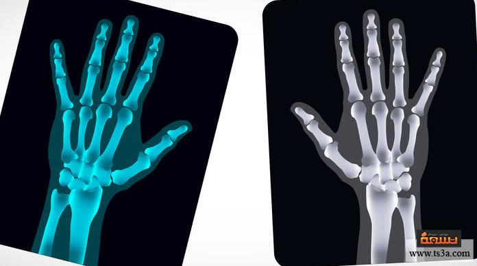 شروخ العظام تعريف مصطلحي شروخ العظام والكسور