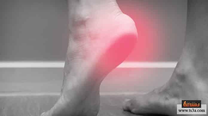 علاج الشوكة العظمية بالثوم