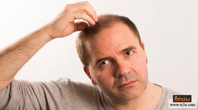 البيوفايبر تجارب زراعة الشعر الصناعي