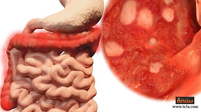 التهاب القولون أعراض التهاب القولون البكتيري