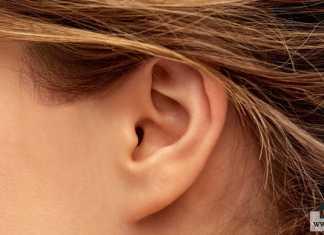 تصغير الأذن