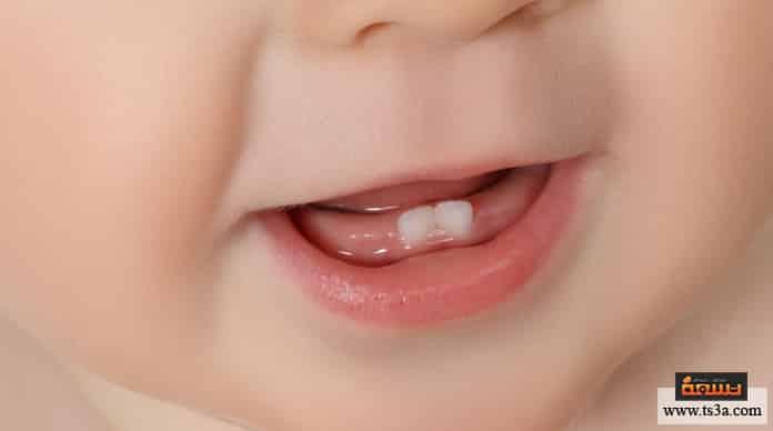 مشاكل أسنان الرضيع تآكل أسنان الرضع