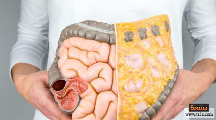 أعصاب المعدة علاج أعصاب المعدة
