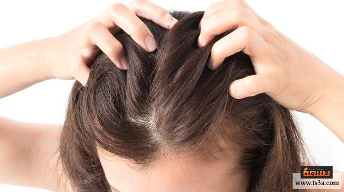 ضعف الشعر أسباب ضعف سماكة الشعر