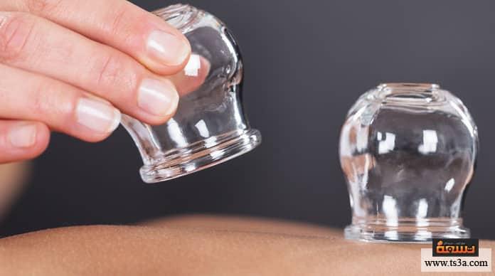 علاج عرق النسا بالحجامة أعراض التهاب عرق النسا