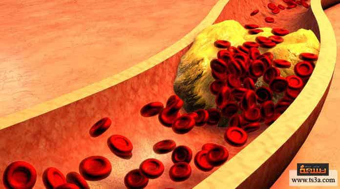 خفض الكوليسترول الضار